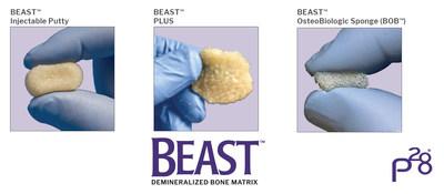 Paragon 28 BEAST™ Injectable, BEAST™ Plus, and BEAST™ Osteobiologic Sponge (BOB™)