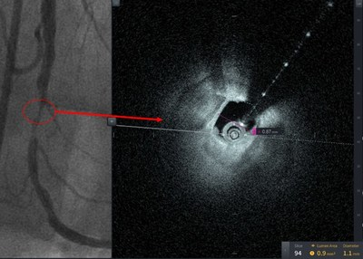 These pictures are from the first patient treated with HF-OCT, performed at Tampa General Hospital, a 1007-bed academic medical center and the primary teaching hospital for the USF Health Morsani College of Medicine. Figure 1A reveals the 90% stenosis pre-intervention. Despite this high-grade stenosis, HF-OCT was able to obtain excellent image quality.